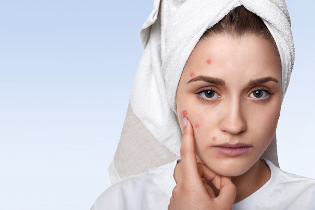 portrait-of-young-woman-having-problem-skin-and-pimple-on-her-cheek-wearing-towel-on-her-head-having-sad-expression-pointing_176532-9979.jpg