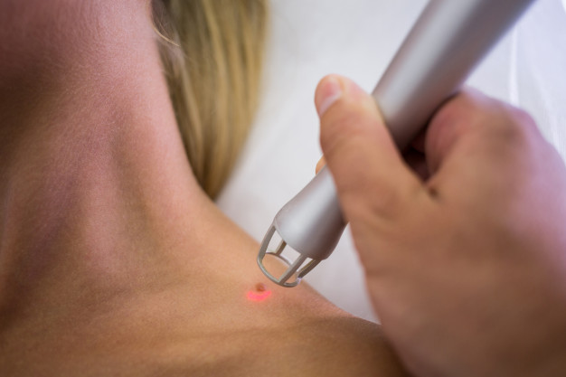 dermatologist-removing-mole-from-womans-shoulder_107420-74018.jpg